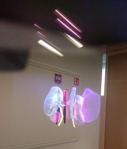 Kidney model viewed on Hololens